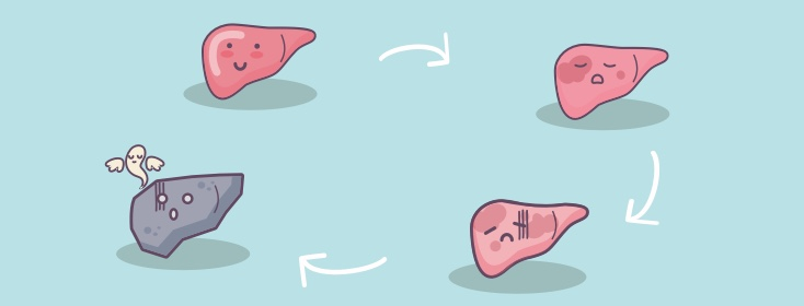 stages of liver cirrhosis hepatitisc net