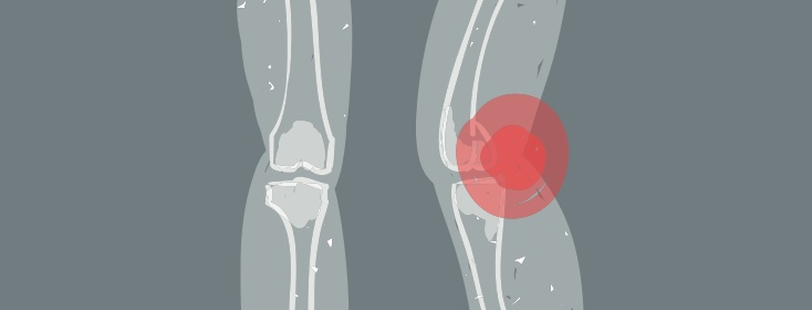 Muscle and Joint Pain with the Hepatitis C Virus