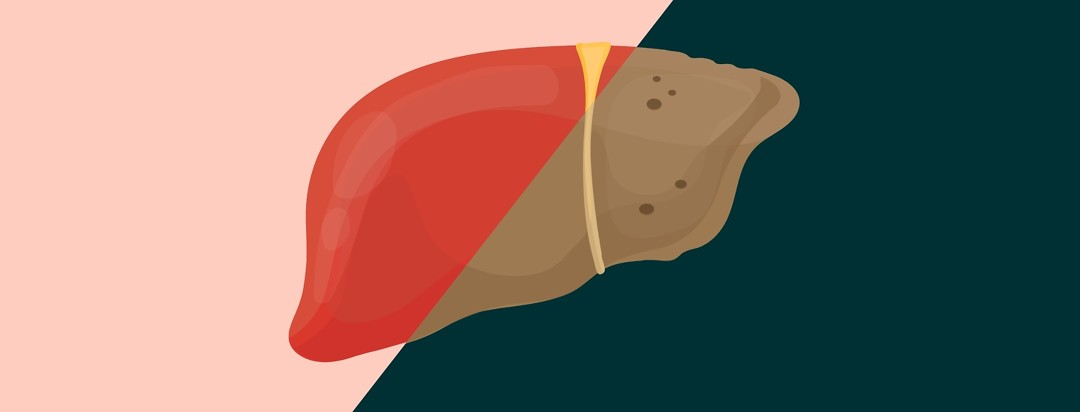 Image of a liver, half is healthy and half is unhealthy