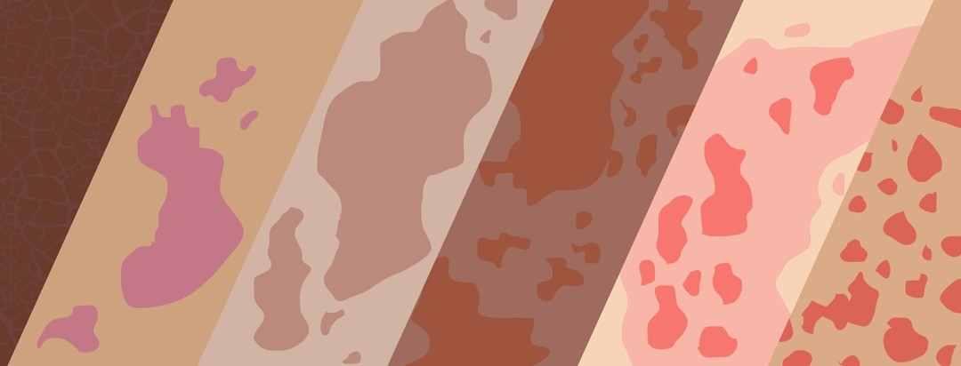 A variety of skin colors and conditions are compared side by side.