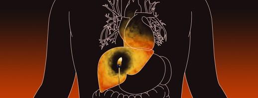 Hepatitis C and Cardiovascular Disease image