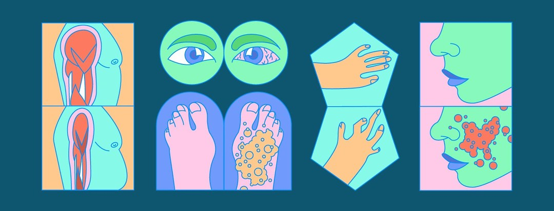 small tiles with interpretations of arthritis, dry eyes, rashes, and muscle loss