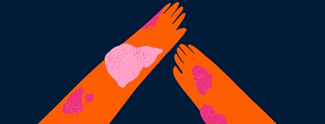 two hands with skin rashes but one rash is in the shape of a liver